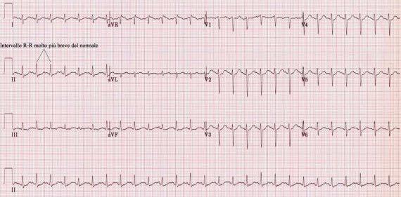 Studio Elettrocardiogramma Catania